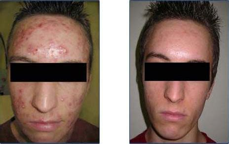 cystic acne how to prevent picture 13