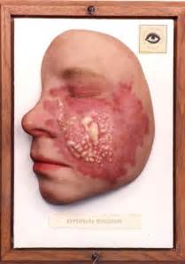 streptococcal skin infection picture 15