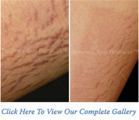 coolbeam laser surgery for stretch marks picture 3