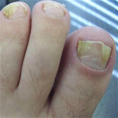common causes of toenail fungus picture 5