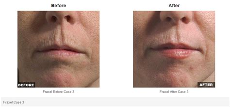 danger of fraxel skin treatment picture 7