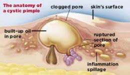 zinc oxide and acne picture 15