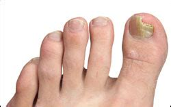 patholase pinpoint foot laser treatments in new york picture 3