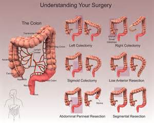 colon surgery proceedure picture 10