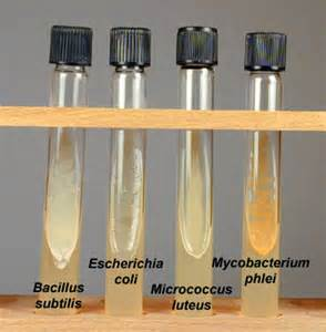 pics of yeast agar slants picture 15