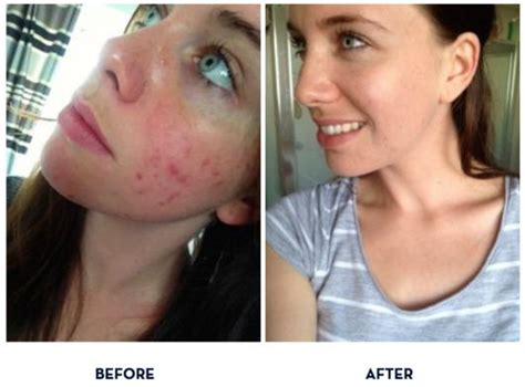 egyptian magic cream before and after picture 6