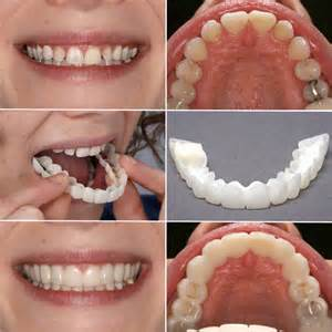 cheap snap on veneers for h picture 1