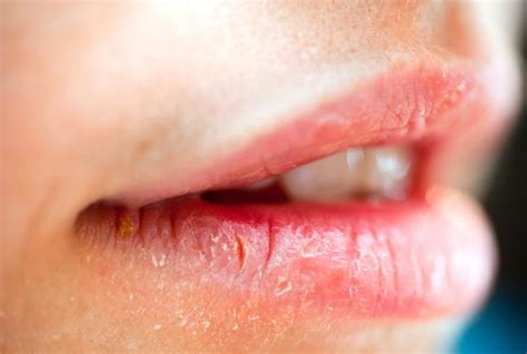 chapped lips symptom of picture 1