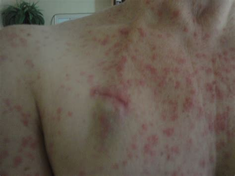 rashes hives picture 5