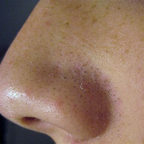 dark pimples on the skin picture 5