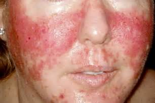 skin & face rash picture 1