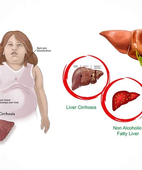 causes of a fatty liver picture 17