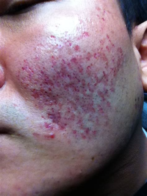 acne scars message board picture 13