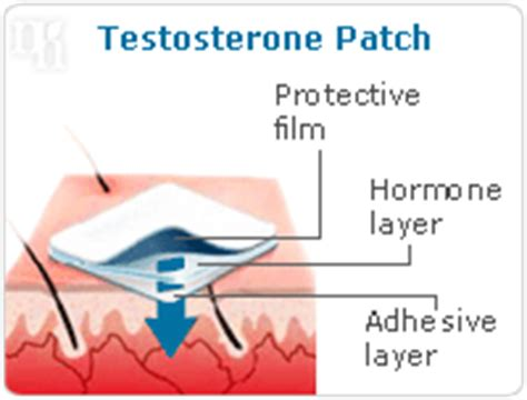 testosterone patch benefits picture 13