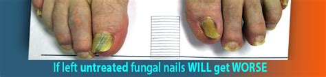 laser treatment fungus toe in florida picture 12