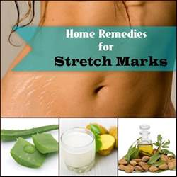 remedy for stretch marks picture 1