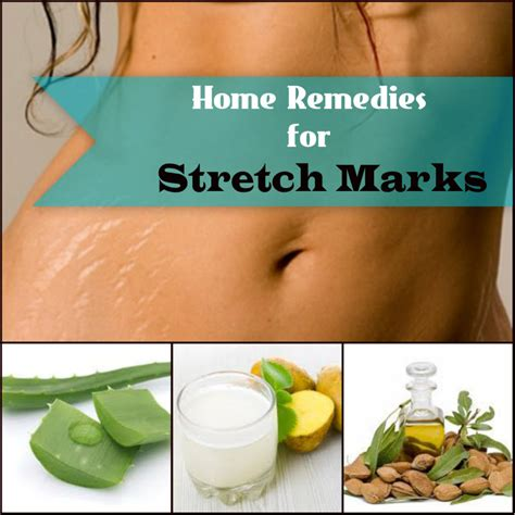 home remedies for stretch marks picture 1