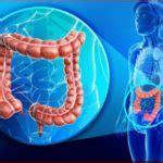 Sptic colon picture 18