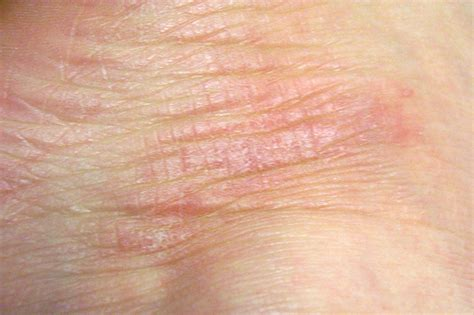 dry skin patches picture 1