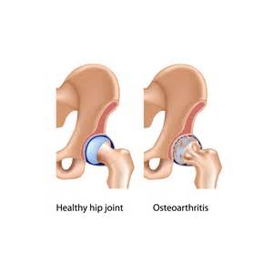 osteoarthritis hip joint picture 7