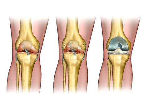 knee joint replacement picture 7