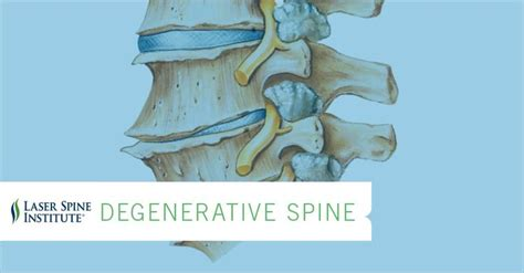 degenrative joint diease in the spine picture 17