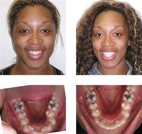 align of teeth after braces picture 5
