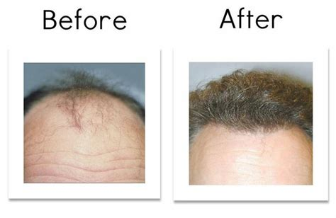 before and after hair center picture 5