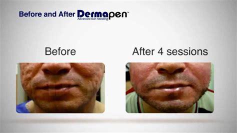 acne treatment comparison picture 13