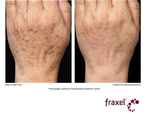 fraxel for acne scars picture 7