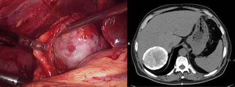 what is an active liver cyst picture 5