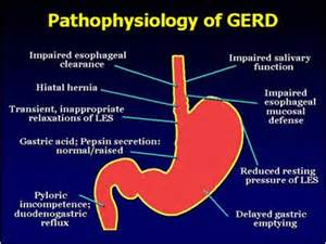 diet for gerd picture 3