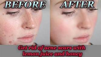 Lemon juice acne picture 1