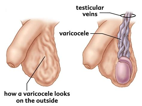 what to expect from a urologist exam for picture 8