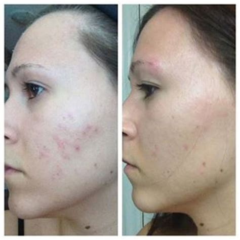 acne scars skin care picture 2