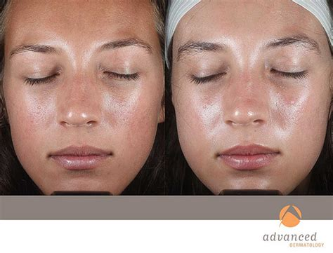 fraxel laser for acne scarring picture 17