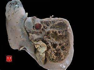 liver damage-chills picture 10
