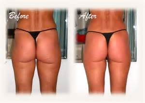 what works best for cellulite picture 7