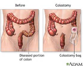 Bowel movements after colon resection surgeruy picture 1