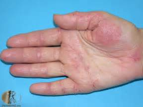 how to remove thicken hand skin from exema picture 4