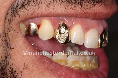 cheapest wholesale price on gold teeth picture 7