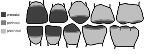 rockville teeth crown picture 11