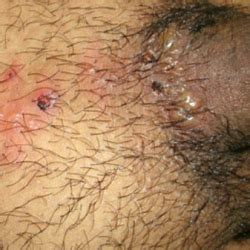 herpes type 2 symptoms and pictures picture 6