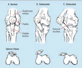 hip joint pops and has pain picture 13