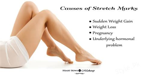 what causes stretch marks picture 6
