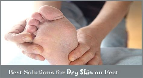 dry skin on feet and hiv picture 11