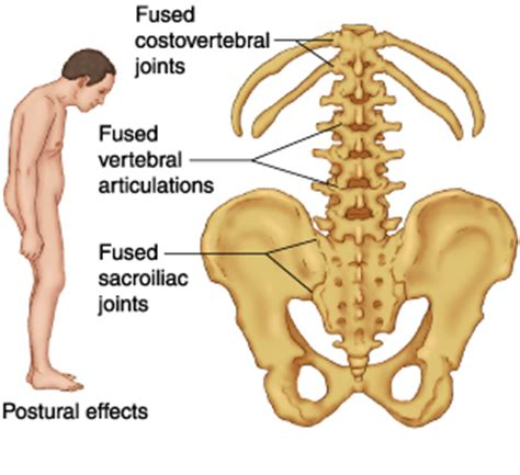 sacroiliac joint pain symptoms picture 6