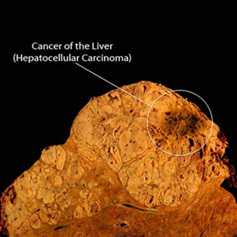 carcinoma of the liver picture 13