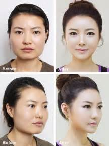 modern insute of plastic surgery & anti aging picture 11