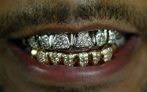 finance me gold teeth picture 7